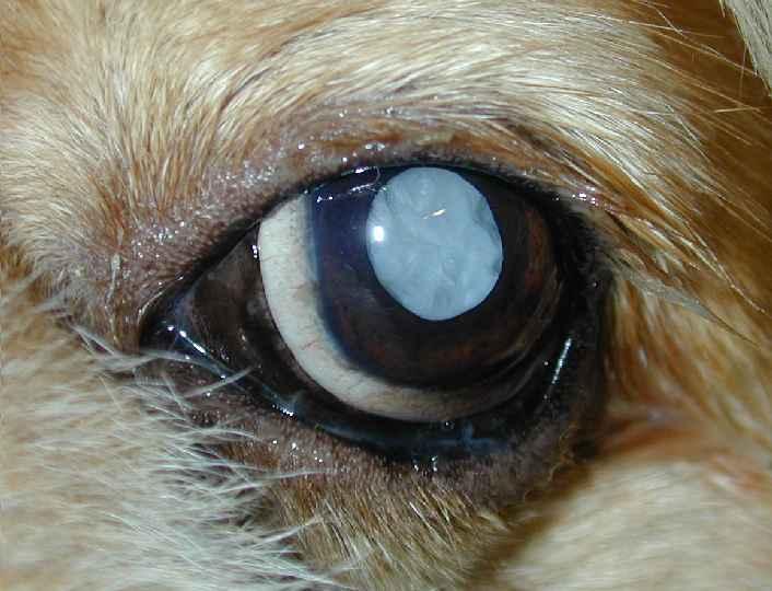 waarom ogen druppelen bij oogonderzoek